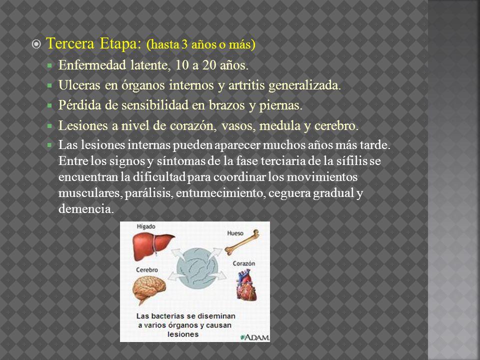 Tercera Etapa: (hasta 3 años o más) Enfermedad latente, 10 a 20 años. Ulceras en órganos internos y artritis generalizada. Pérdida de sensibilidad en