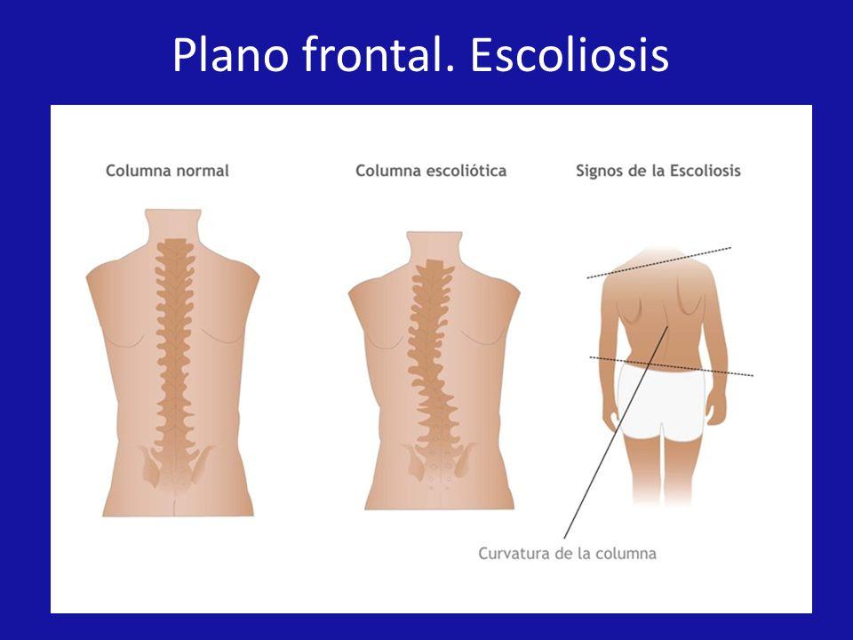 Plano frontal. Escoliosis