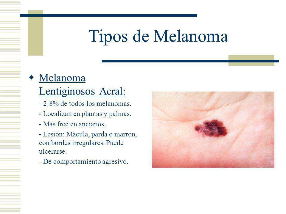 Tipos de Melanoma  Melanoma Lentiginosos Acral: - 2-8% de todos los melanomas.