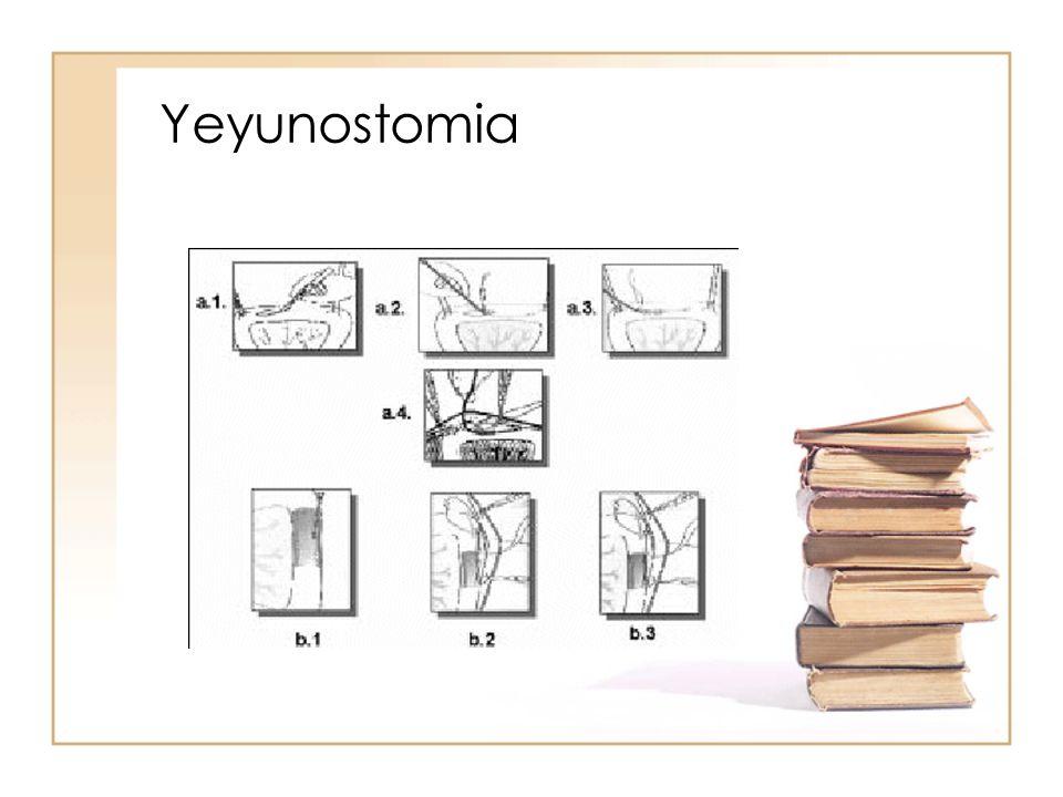 Yeyunostomia