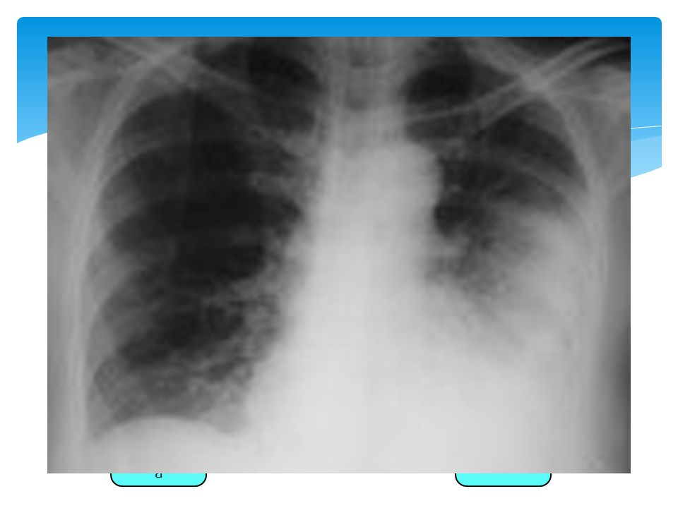  Tinción de gram; si es de liquido pleural y tejido pulmonar sugiere el Dx.
