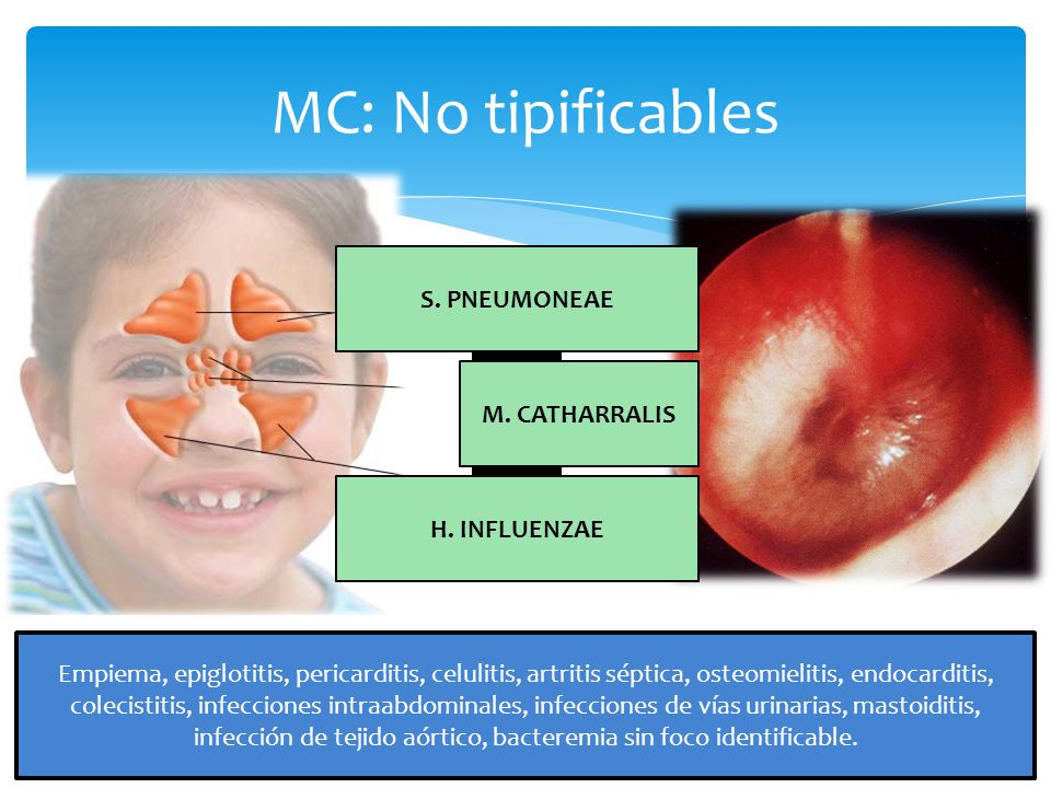 MC: No tipificables M.CATHARRALIS H. INFLUENZAE S.