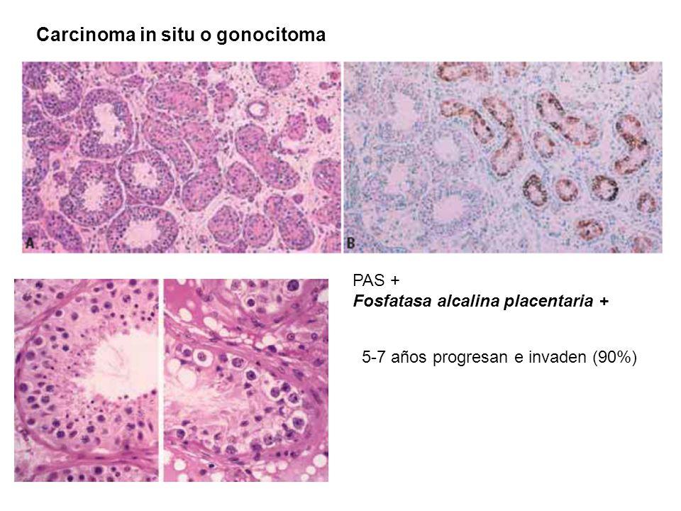 Гоноцитома фото