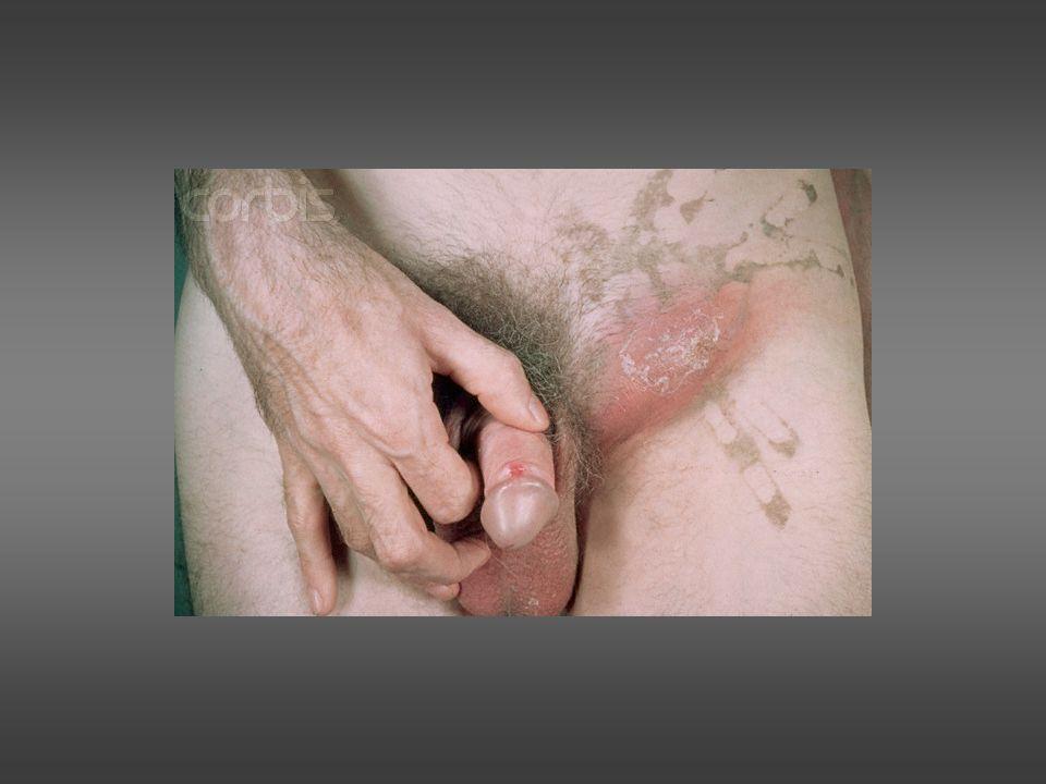 Estudio en el Hombre Toma uretral para gonococo.Toma uretral para C.