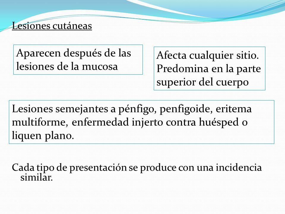 Lesiones cutáneas Cada tipo de presentación se produce con una incidencia similar.