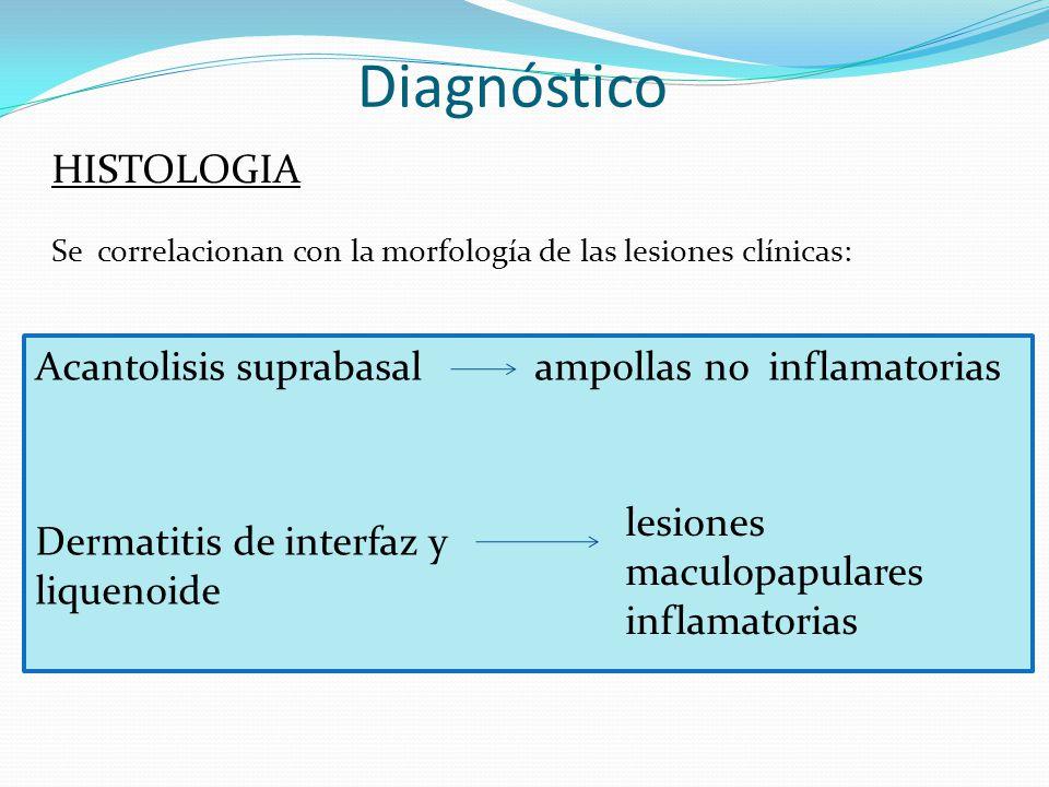 Diagnóstico HISTOLOGIA Se correlacionan con la morfología de las lesiones clínicas: Acantolisis suprabasal ampollas no inflamatorias Dermatitis de interfaz y liquenoide lesiones maculopapulares inflamatorias