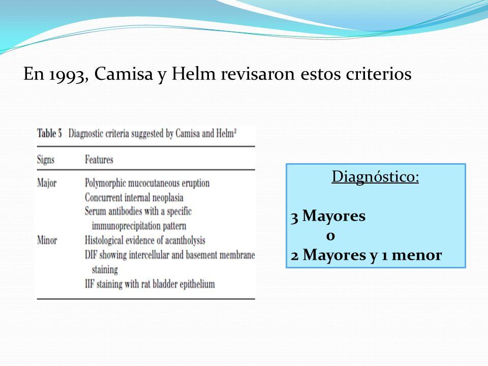 En 1993, Camisa y Helm revisaron estos criterios Diagnóstico: 3 Mayores 0 2 Mayores y 1 menor