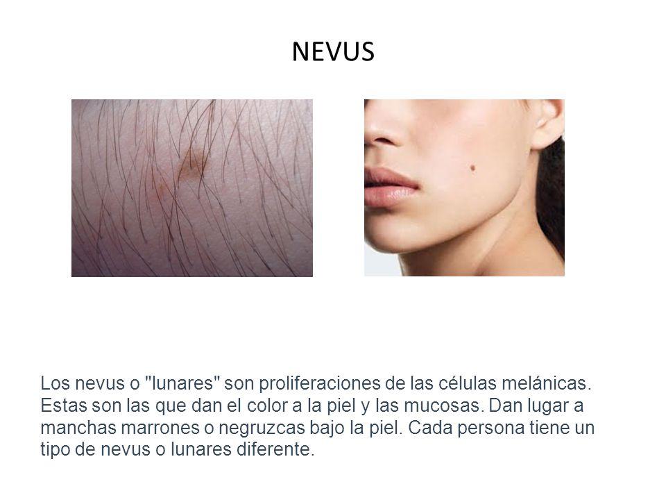 CICATRIZ ATROFICA Estas cicatrices son generalmente pequeñas y redondas.