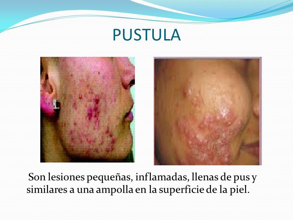 PUSTULA Son lesiones pequeñas, inflamadas, llenas de pus y similares a una ampolla en la superficie de la piel.