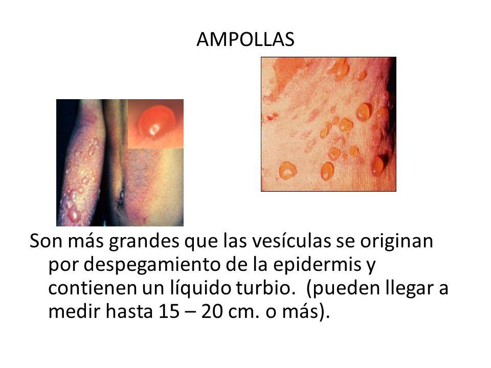 AMPOLLAS Son más grandes que las vesículas se originan por despegamiento de la epidermis y contienen un líquido turbio. (pueden llegar a medir hasta 1