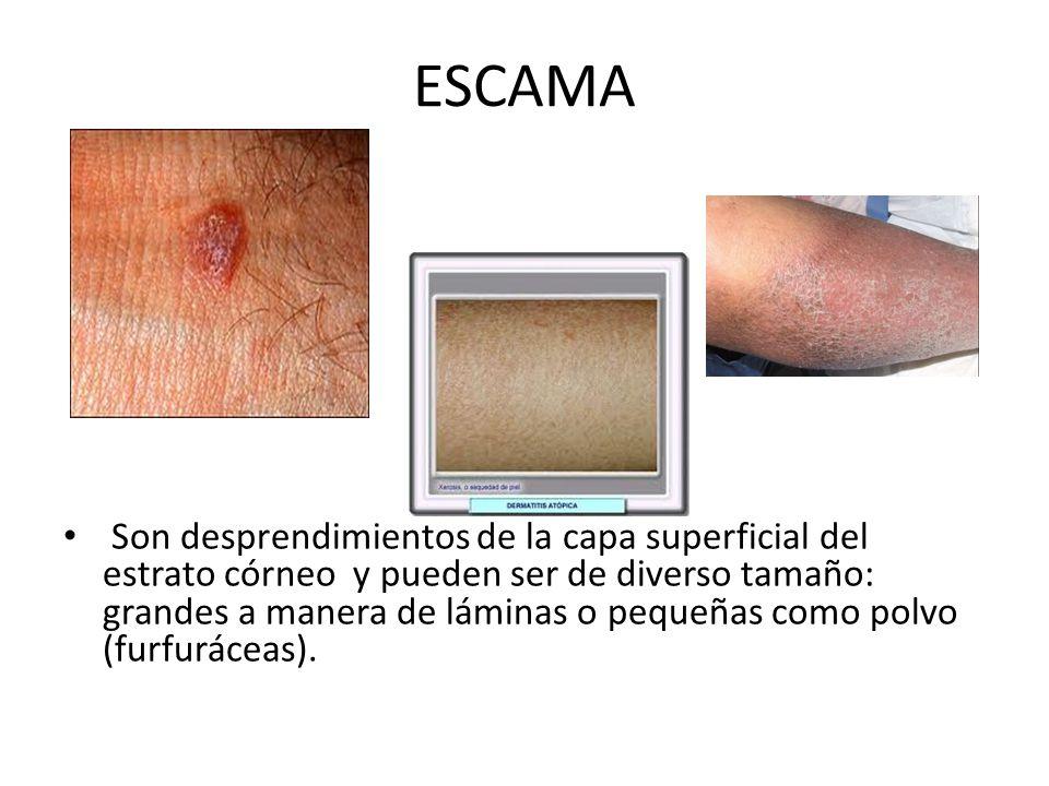 ESCAMA Son desprendimientos de la capa superficial del estrato córneo y pueden ser de diverso tamaño: grandes a manera de láminas o pequeñas como polv
