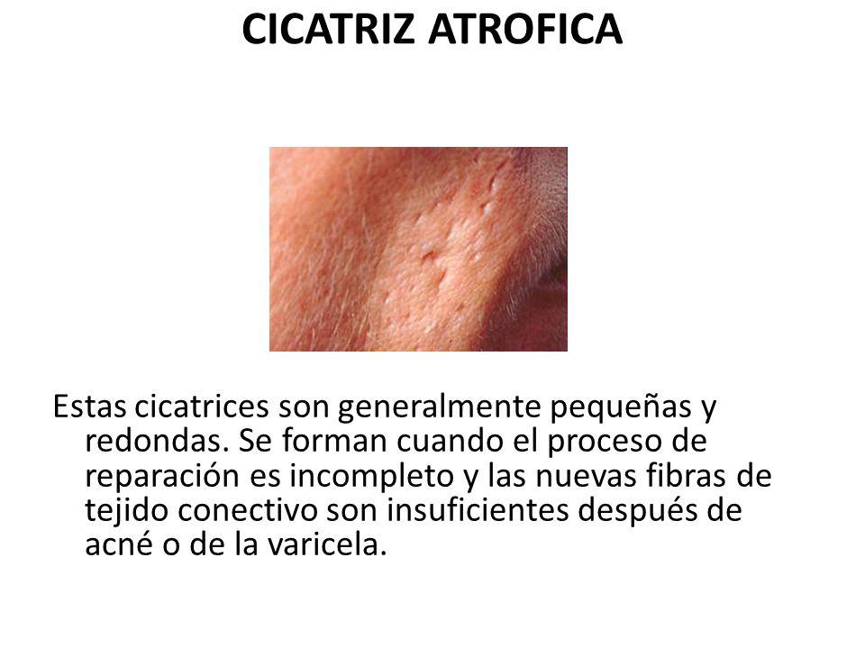 CICATRIZ ATROFICA Estas cicatrices son generalmente pequeñas y redondas. Se forman cuando el proceso de reparación es incompleto y las nuevas fibras d