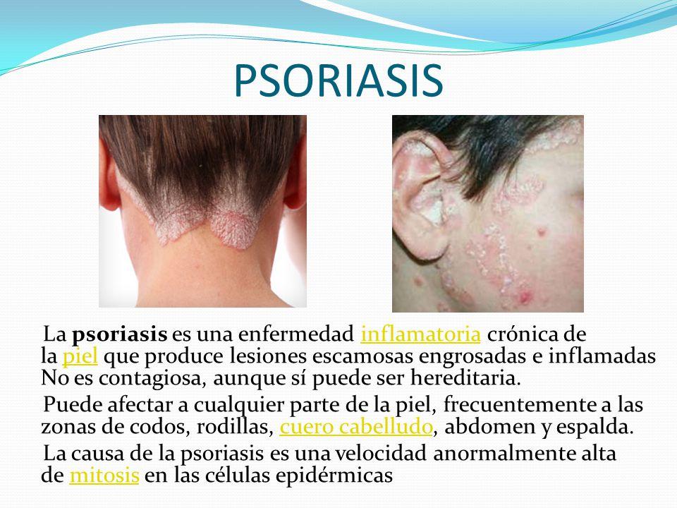 PSORIASIS La psoriasis es una enfermedad inflamatoria crónica de la piel que produce lesiones escamosas engrosadas e inflamadas No es contagiosa, aunq