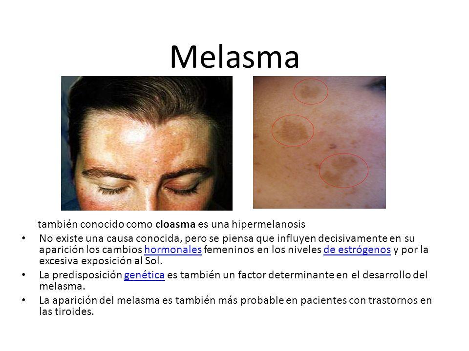 Melasma también conocido como cloasma es una hipermelanosis No existe una causa conocida, pero se piensa que influyen decisivamente en su aparición lo