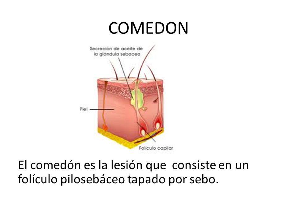 COMEDON ABIERTO El comedón abierto es el famoso punto negro , una lesión puntiforme, normalmente de menos de 3 mm de diámetro y cuya pigmentación se debe a la melanina y la oxidación de la queratina.