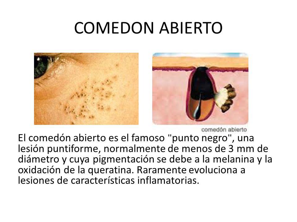 COMEDON ABIERTO El comedón abierto es el famoso