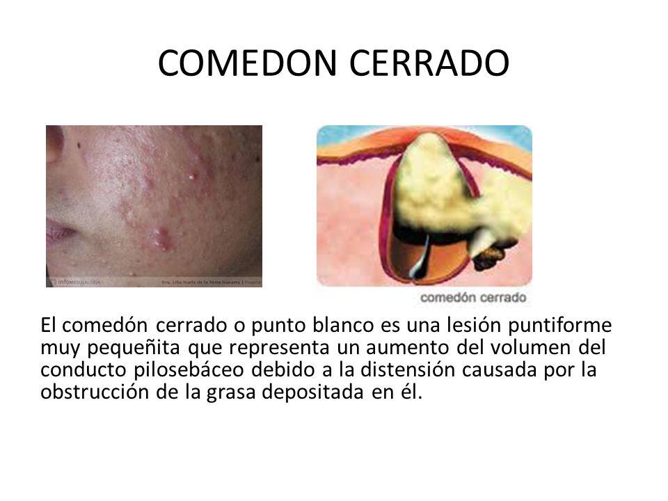 COMEDON CERRADO El comedón cerrado o punto blanco es una lesión puntiforme muy pequeñita que representa un aumento del volumen del conducto pilosebáce