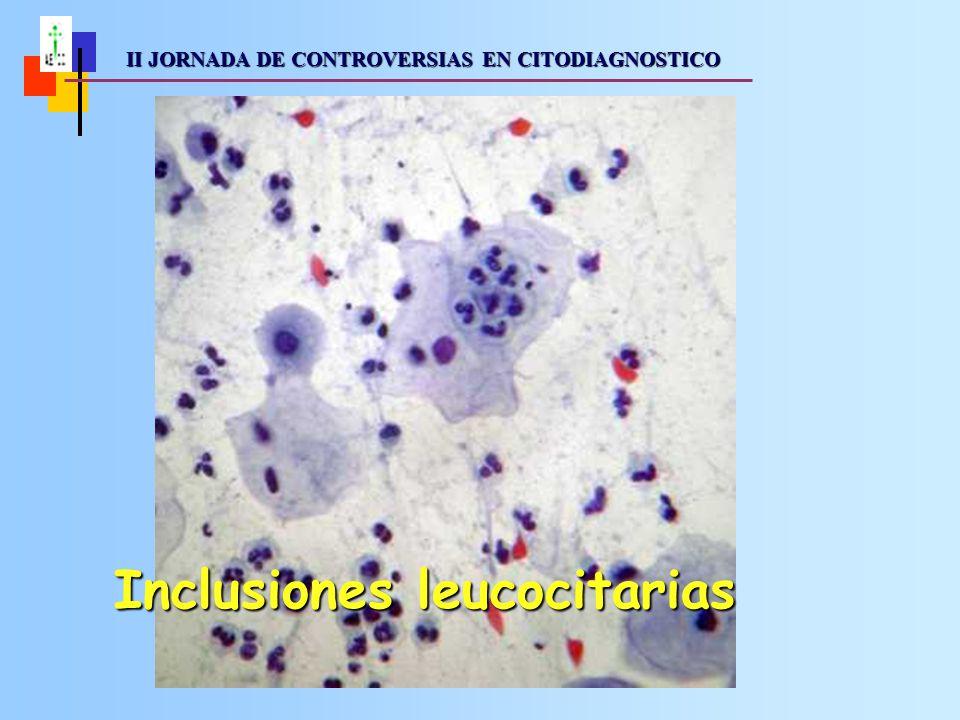 Inclusiones leucocitarias