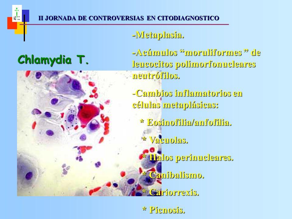 II JORNADA DE CONTROVERSIAS EN CITODIAGNOSTICO II JORNADA DE CONTROVERSIAS EN CITODIAGNOSTICO Betheesda 2001 - Chlamydia T.