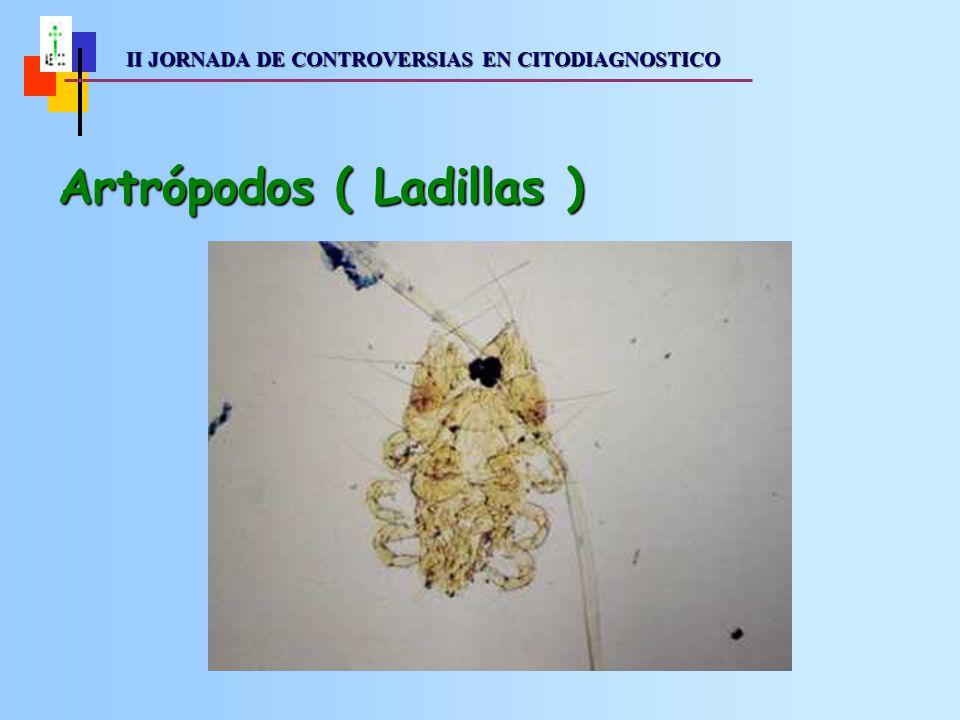 II JORNADA DE CONTROVERSIAS EN CITODIAGNOSTICO II JORNADA DE CONTROVERSIAS EN CITODIAGNOSTICO Artrópodos ( Ladillas )