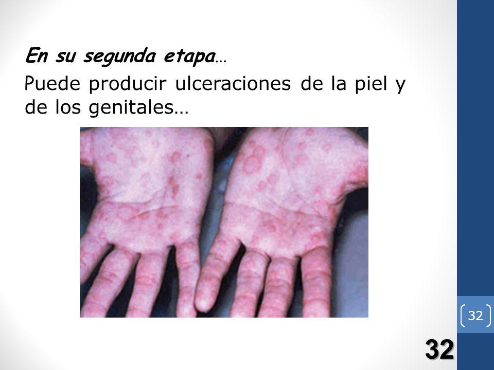 32 En su segunda etapa… P uede producir ulceraciones de la piel y de los genitales… 32 32