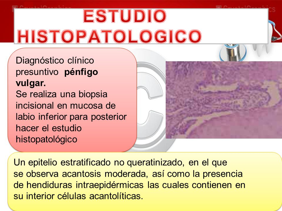 Diagnóstico clínico presuntivo pénfigo vulgar. Se realiza una biopsia incisional en mucosa de labio inferior para posterior hacer el estudio histopato