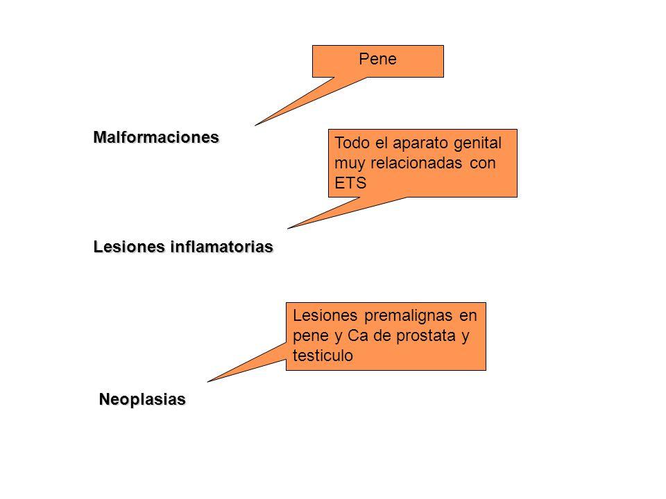 Lesiones inflamatorias Malformaciones Neoplasias Pene Todo el aparato genital muy relacionadas con ETS Lesiones premalignas en pene y Ca de prostata y