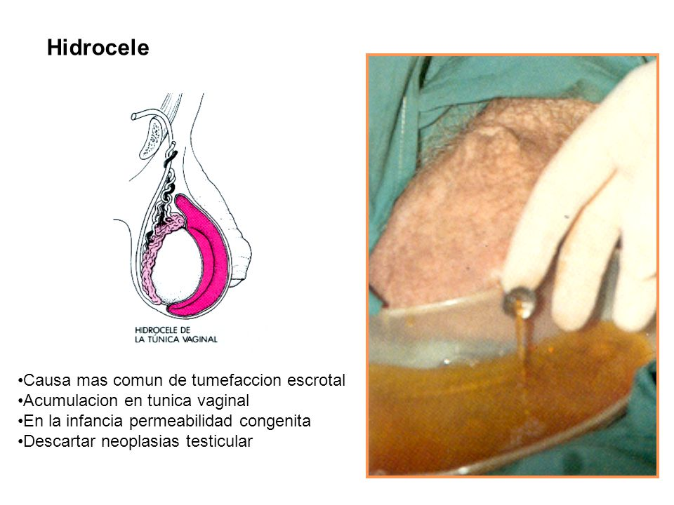 Hidrocele Causa mas comun de tumefaccion escrotal Acumulacion en tunica vaginal En la infancia permeabilidad congenita Descartar neoplasias testicular