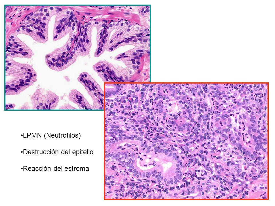 LPMN (Neutrofilos) Destrucción del epitelio Reacción del estroma