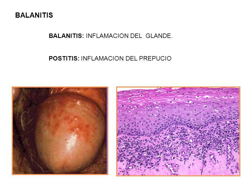 BALANITIS BALANITIS: INFLAMACION DEL GLANDE. POSTITIS: INFLAMACION DEL PREPUCIO