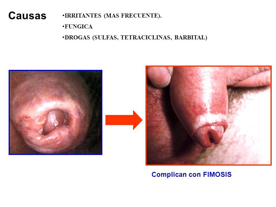 IRRITANTES (MAS FRECUENTE). FUNGICA DROGAS (SULFAS, TETRACICLINAS, BARBITAL) Causas Complican con FIMOSIS
