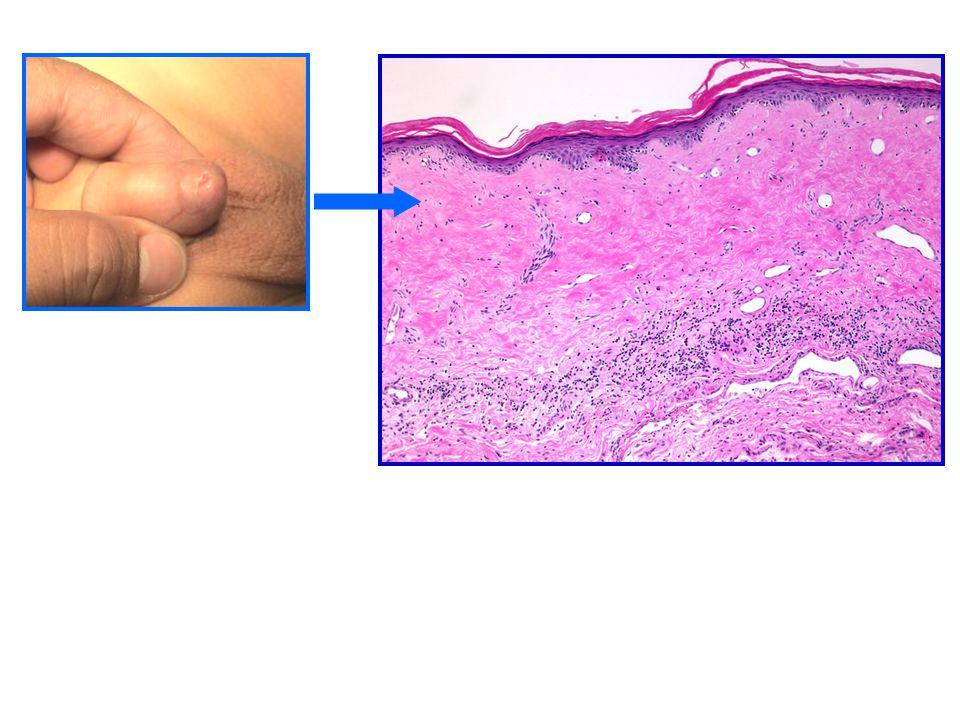 Epididimitis Orquitis Via retrograda urinaria Poco frecuentes en niños Mas frecuentes en púberes - adultos Comienzo insidioso Fiebre Dolor Ante la duda llevar a quirofano
