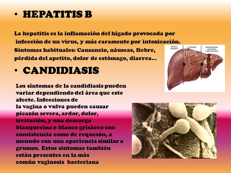 HEPATITIS B La hepatitis es la inflamación del hígado provocada por infección de un virus, y más raramente por intoxicación.