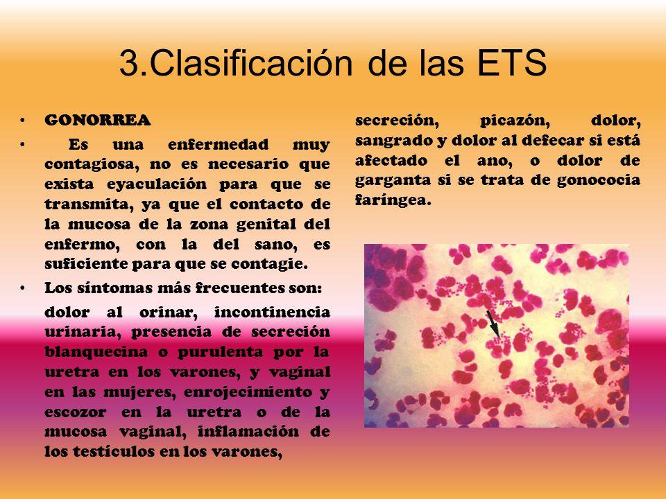 3.Clasificación de las ETS GONORREA Es una enfermedad muy contagiosa, no es necesario que exista eyaculación para que se transmita, ya que el contacto de la mucosa de la zona genital del enfermo, con la del sano, es suficiente para que se contagie.