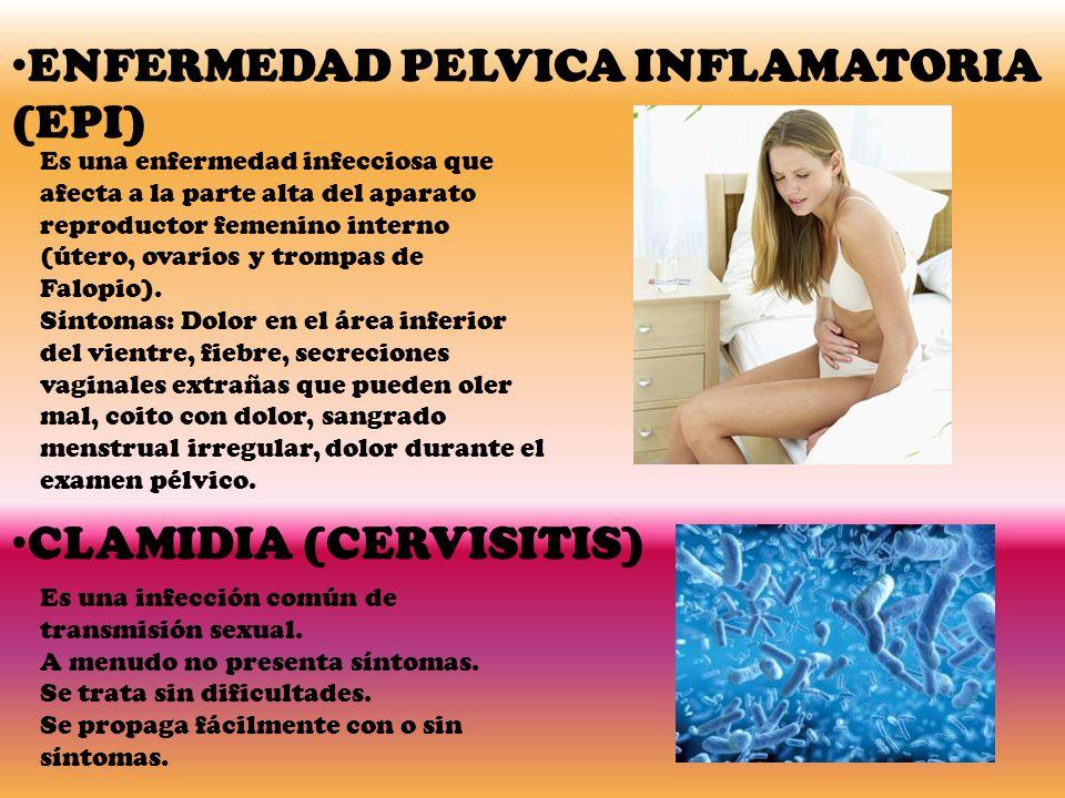 ENFERMEDAD PELVICA INFLAMATORIA (EPI) Es una enfermedad infecciosa que afecta a la parte alta del aparato reproductor femenino interno (útero, ovarios y trompas de Falopio).