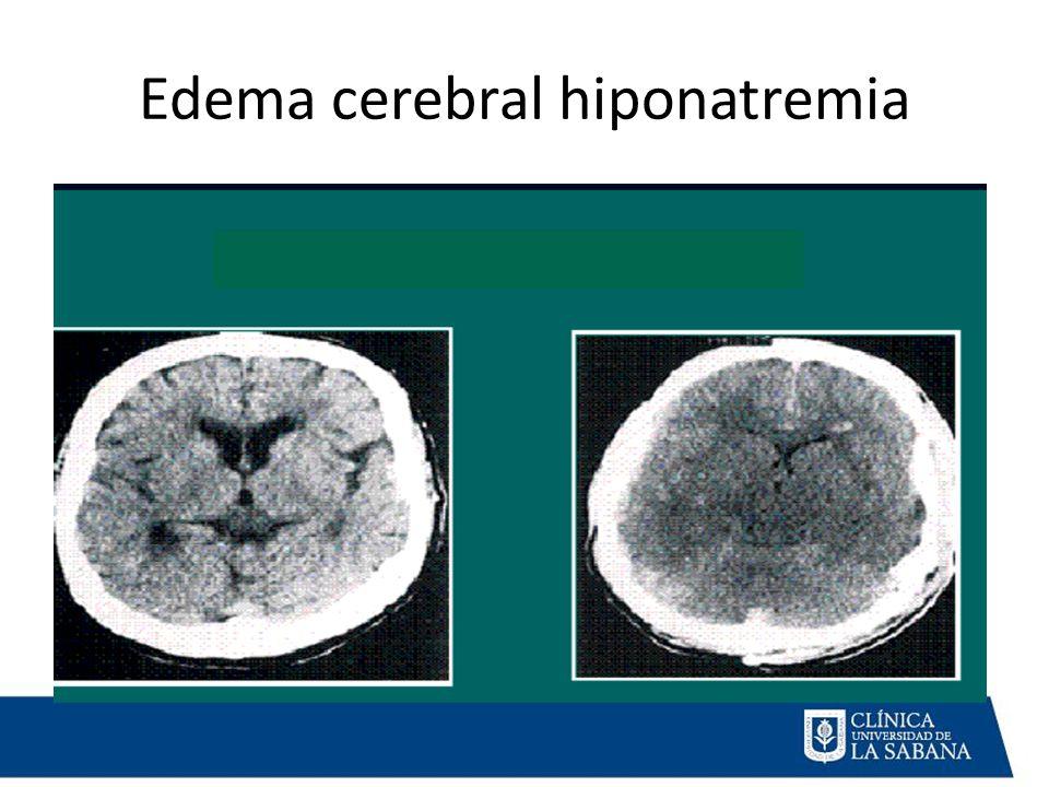 Edema cerebral hiponatremia