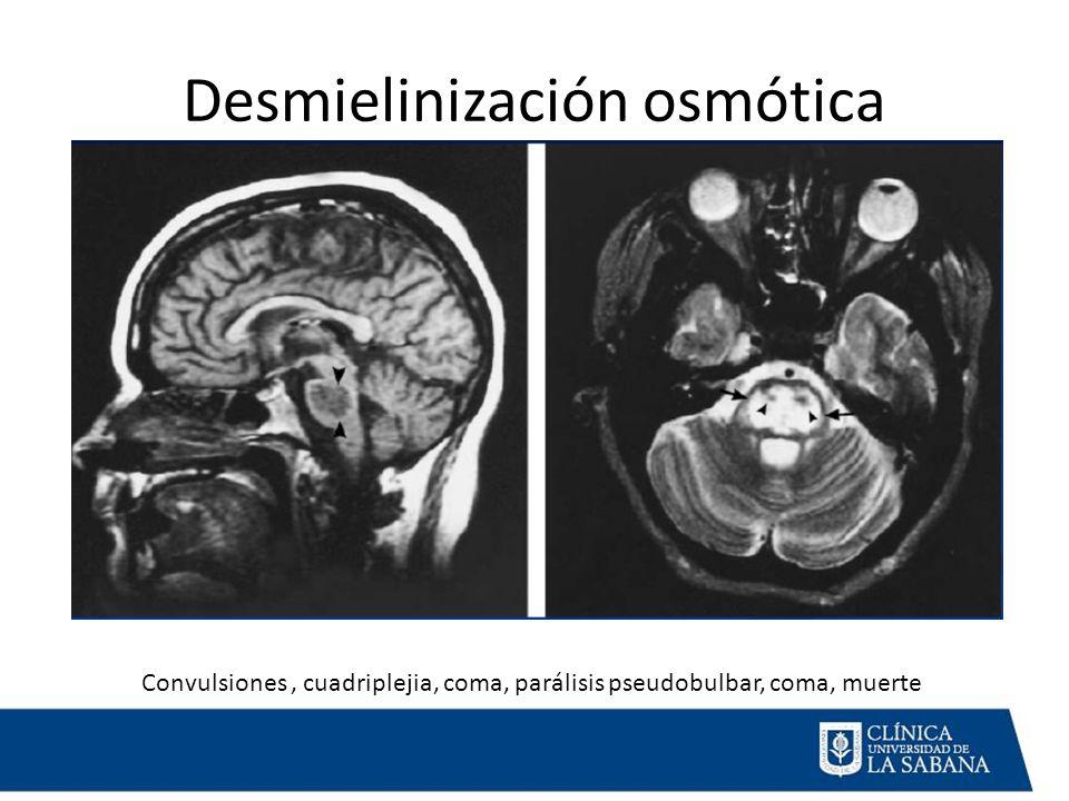 Desmielinización osmótica Convulsiones, cuadriplejia, coma, parálisis pseudobulbar, coma, muerte