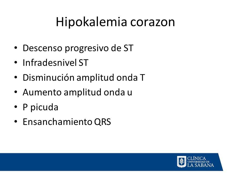 Hipokalemia corazon Descenso progresivo de ST Infradesnivel ST Disminución amplitud onda T Aumento amplitud onda u P picuda Ensanchamiento QRS