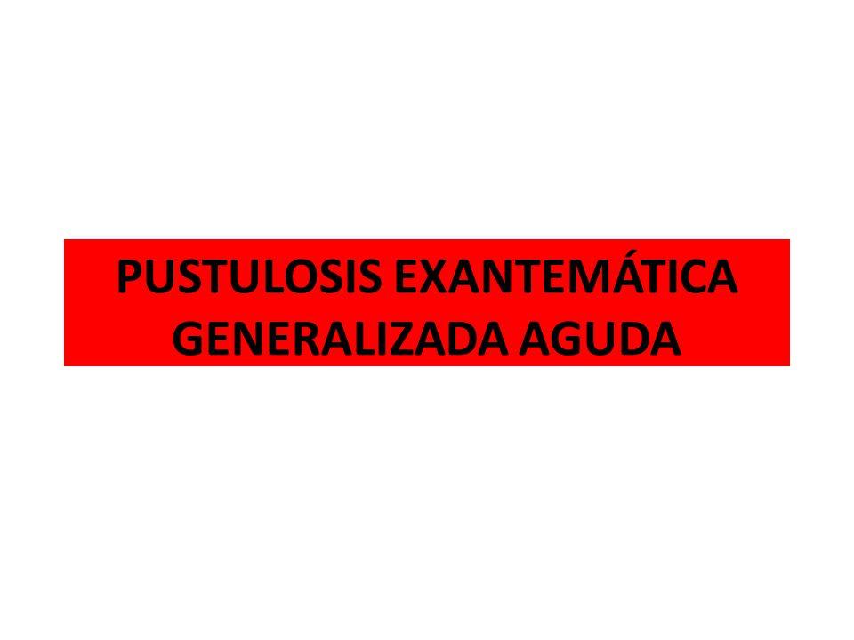 PUSTULOSIS EXANTEMÁTICA GENERALIZADA AGUDA