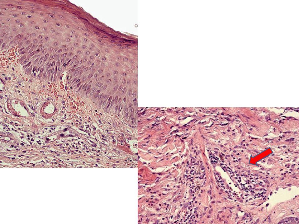 PEGA - MANEJO SUSPENSIÓN DEL FÁRMACO RELACIONADO Tratamiento de sostén Corticoterapia sistémica Test epicutáneos Chang SL et al.