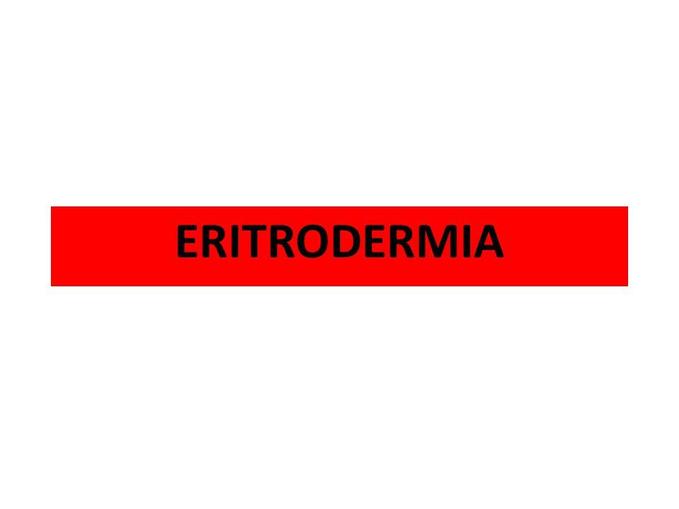 Dermatosis inflamatoria, eritematosa y descamativa que afecta casi o la totalidad de la piel, en general con marcado compromiso de homeostasis.