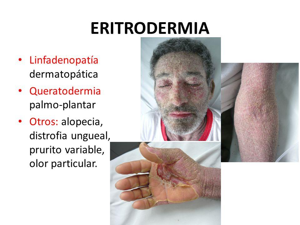 Linfadenopatía dermatopática Queratodermia palmo-plantar Otros: alopecia, distrofia ungueal, prurito variable, olor particular.