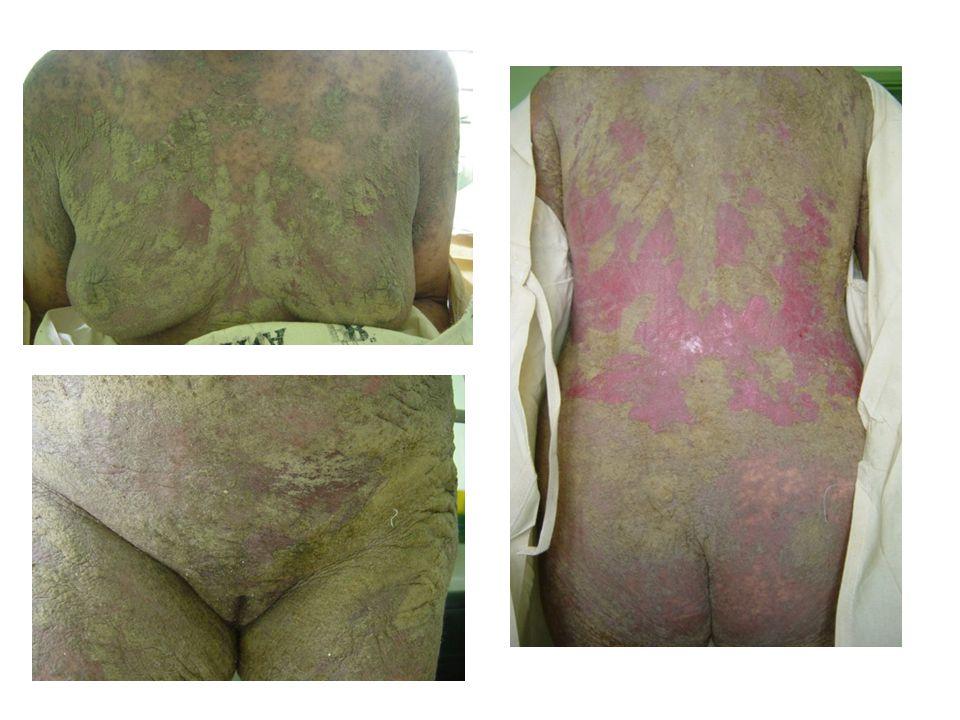 1.Secundarias a dermatosis (40%) 2.Idiopáticas (20-40%) 3.Farmacodermias (15 -20%) 4.Neoplásicas (5%) 5.Infecciosas 6.Infantiles ERITRODERMIA - ETIOLOGÍA