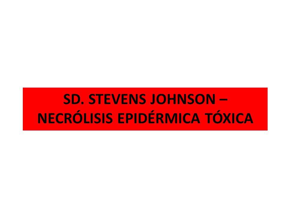 SD.STEVENS JOHNSON - NET Reacciones graves a drogas Aparición aguda Mecanismo de producción desconocido Compromiso mucocutáneo grave: epitelio respiratorio, tracto GI y genitourinario Síntomas sistémicos: fiebre, tos, malestar general Alta mortalidad