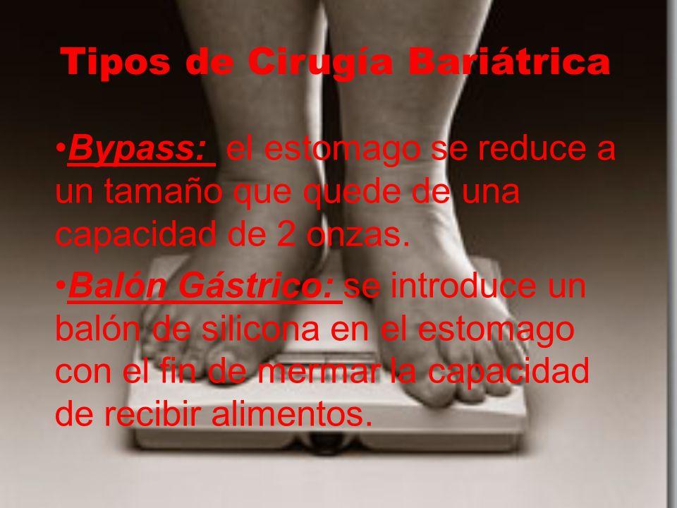Tipos de Cirugía Bariátrica Bypass: el estomago se reduce a un tamaño que quede de una capacidad de 2 onzas. Balón Gástrico: se introduce un balón de