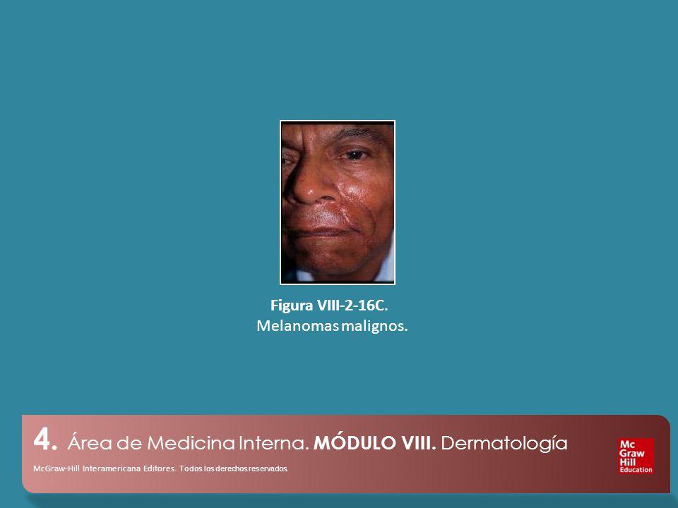 4. Área de Medicina Interna. MÓDULO VIII. Dermatología McGraw-Hill Interamericana Editores.