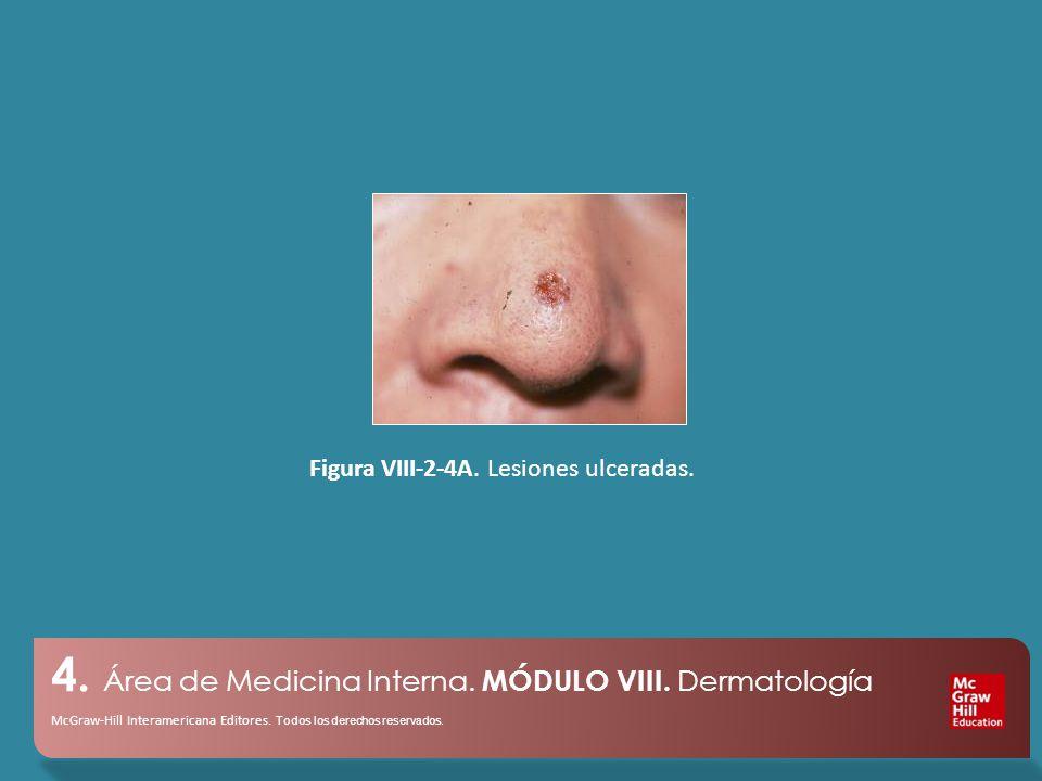 4.Área de Medicina Interna. MÓDULO VIII. Dermatología McGraw-Hill Interamericana Editores.
