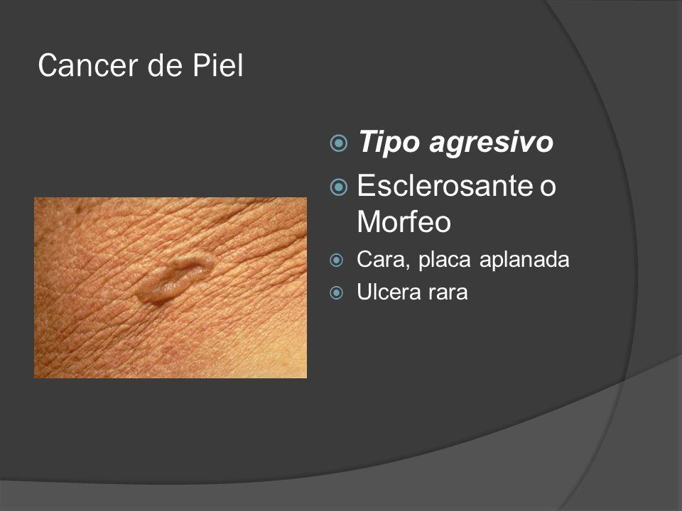Cancer de Piel  Tipo agresivo  Esclerosante o Morfeo  Cara, placa aplanada  Ulcera rara