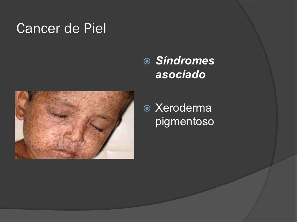 Cancer de Piel  Síndromes asociado  Xeroderma pigmentoso