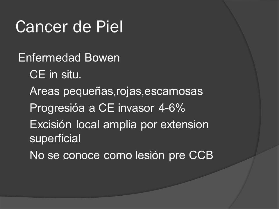 Enfermedad Bowen CE in situ.
